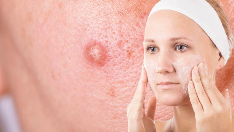 Маски от угревой болезни для здоровья вашей кожи