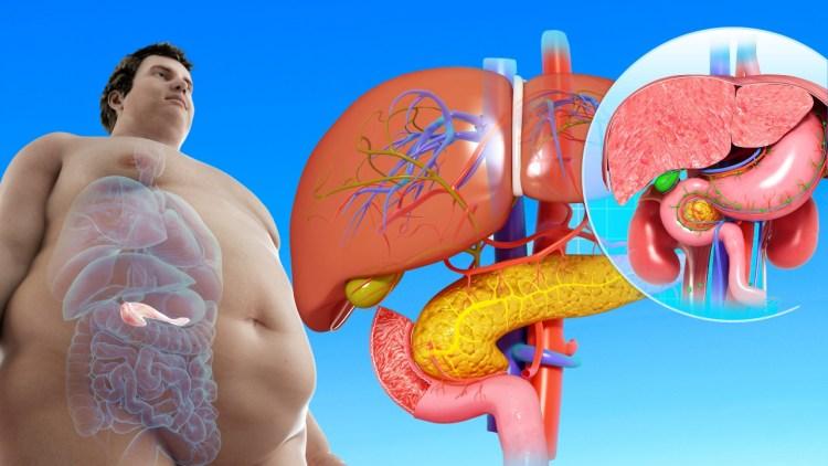 Как снизить риск возникновения приступов панкреатита: советы доктора медицины