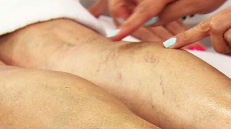 варикоз вен на ногах лечение народными средствами