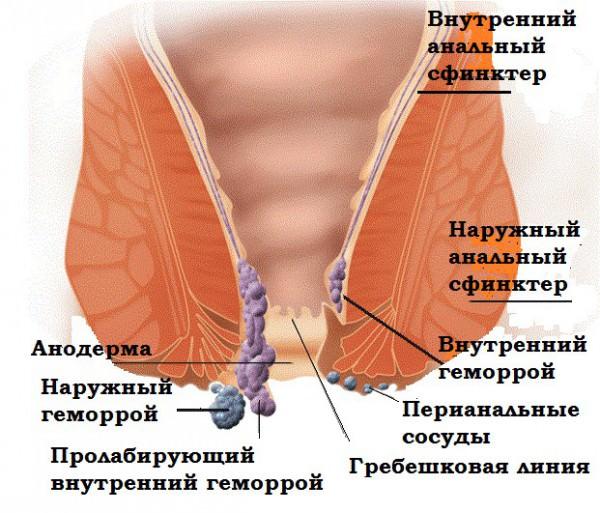 Prostatitis fájdalom a hátsó passzán)