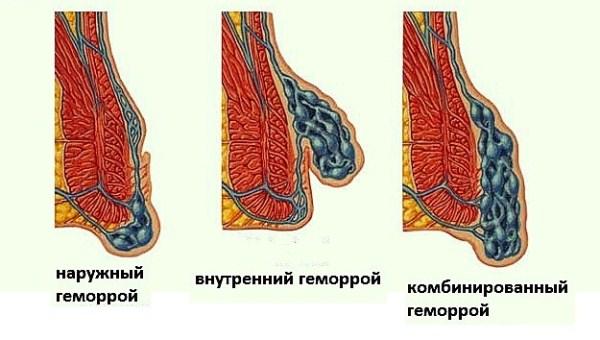 troksevazinas erekcijai)