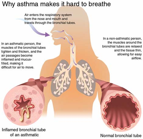 How to Overcome Asthma Attack Triggers - Learn Spiritual