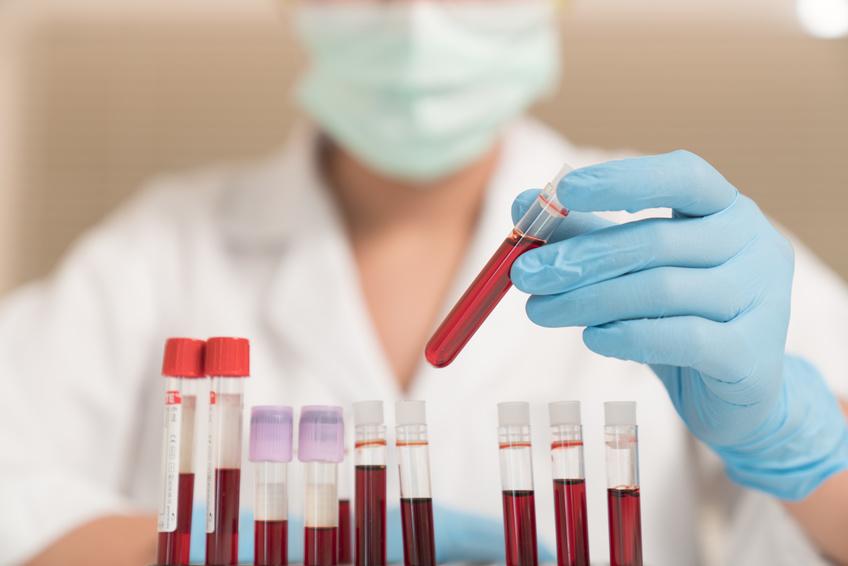 Histamine intolerance, mast cells & autoimmune disorders