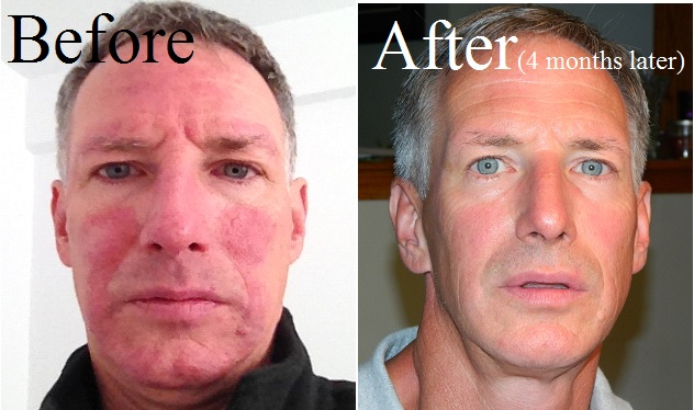Rosacea - Before & After - HEAL Wellness Center and Spa