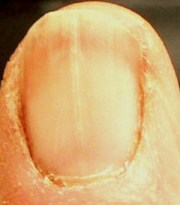 vitamin b12 and fingernails