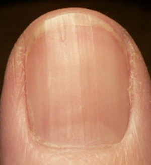 fingernail pictures re b12 health boundaries