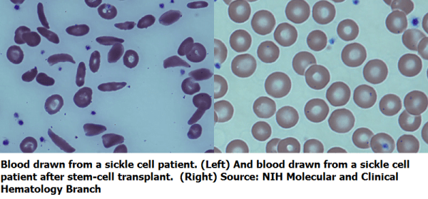 Adults stop anti-rejection drugs after partial stem-cell transplant reverses sickle cell disease - healthinnovations