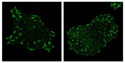 Focal adhesion complexes (bright green) are typically large and sticky, anchoring a cell into place (left). When the gene DIXDC1 is knocked out, focal adhesion complexes instead become small and numerous, readying cancer cells to move into the bloodstream and become metastatic (right).  Image: Courtesy of the Salk Institute for Biological Studies.
