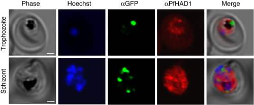 PfHAD1 is expressed in blood-stage parasites and is localized to the parasite cytoplasm. Immunofluorescence confocal microscopy of ACPL-GFP trophozoite and schizont37, stained with αGFP and αPfHAD1 antibodies and Hoechst 33258 nuclear stain. Scale bars, 2μm.  A sugar phosphatase regulates the methylerythritol phosphate (MEP) pathway in malaria parasites.  Odom et al 2014.
