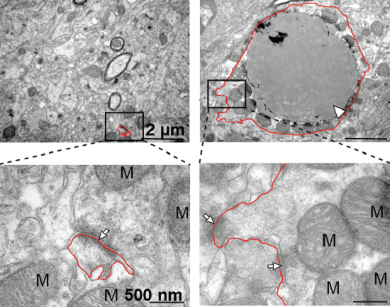 Neuronal processes in the DDHD2–/–brains contain large lipid droplets that likely cause swelling and displacement ofmitochondria to the periphery. Insert shows magnification of synapses onto the process [(red line outlines margins of the process). M = Mitochondria, N = Nuclei, Arrows = synapses, Arrowheads = LD].  Scale bars: (A), (B) and bottom (C): 500nm, top (C): 2μm.  Images shown are representative of 3 biological replicates per group.  The hereditary spastic paraplegia-related enzyme DDHD2 is a principal brain triglyceride lipase.  Cravatt et al 2014.