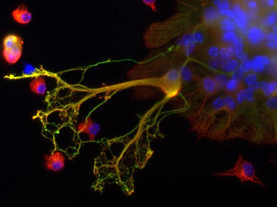 Oligodendrocytes in culture.  Credit:  Inserm - All rights reserved.