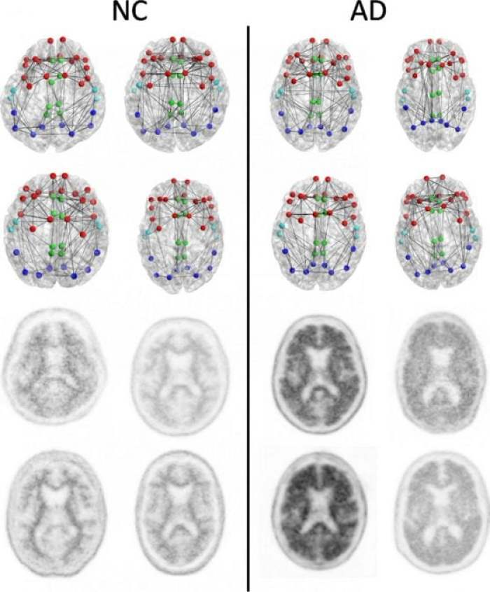 Structural connectomes (top two rows) and corresponding florbetapir PET images (bottom two rows) in four patients with normal cognition (NC) with the lowest whole cortex amyloid burden (left) and the four patients with AD with the highest whole cortex amyloid burden (right) focused on the composite regions used in connectome versus amyloid analysis. Nodes represent the centroids of the FreeSurfer parcellations in the frontal (red), cingulate (green), temporal (light blue), and parietal (dark blue) regions. This is merely a schematic intended to show the concepts and is not intended to show any visually discernible generalizable difference between the patients with NC and those with AD. Structural network metrics provide more sensitive information about the connectome than are apparent through visualization alone.  Credit: RSNA.