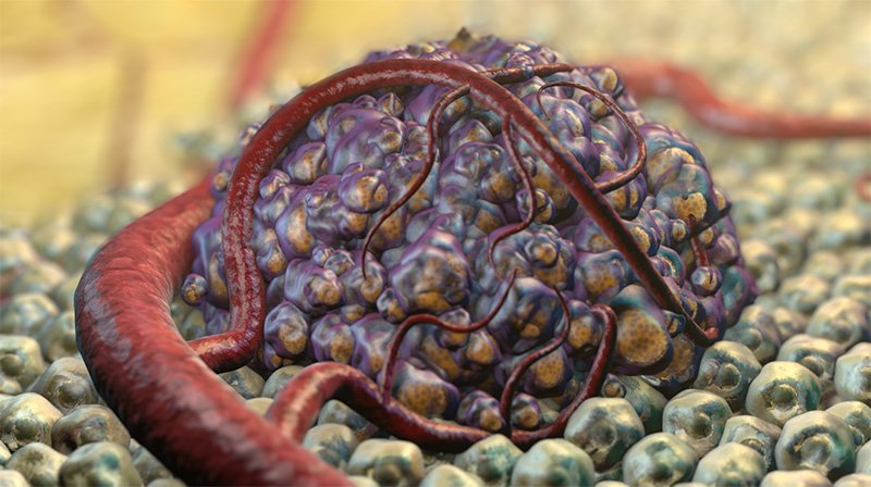 How cancer develops: detailed animation.  © 2014 Nanobotmodels Medical Animation.