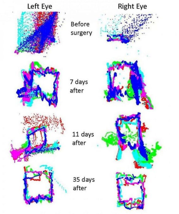 A veteran with a small skull fracture and bleeding on the surface of his brain had eye movements that were most intensely affected prior to surgery for repair (day 0). Vertical movements were decreased relative to horizontal movement. As the patient recovered over the next several weeks the eye movements gradually returned to near normal (day 35).  Credit: NYU Langone Medical Center.