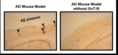 Immunostaining of Aβ plaques showed that while the normal mouse model for Alzheimer's disease displayed numerous Aβ plaques (left, black arrows), the number of plaques was significantly reduced when these mice lacked the GnT-III enzyme (right). Scale bar, 300 μm.  Credit:  RIKEN 2015.