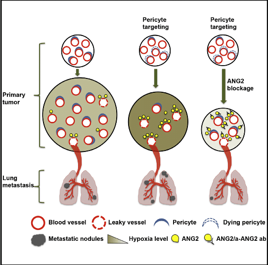 Strategies to target angiogenesis include inhibition of the vessel-stabilizing properties of vascular pericytes. Pericyte depletion in early-stage non-hypoxic tumors suppressed nascent angiogenesis, tumor growth, and lung metastasis. In contrast, pericyte depletion in advanced-stage hypoxic tumors with pre-established vasculature resulted in enhanced intra-tumoral hypoxia, decreased tumor growth, and increased lung metastasis. Furthermore, depletion of pericytes in post-natal retinal blood vessels resulted in abnormal and leaky vasculature. Tumor transcriptome profiling and biological validation revealed that angiopoietin signaling is a key regulatory pathway associated with pericyte targeting. Indeed, pericyte targeting in established mouse tumors increased angiopoietin-2 (ANG2/Angpt2) expression. Depletion of pericytes, coupled with targeting of ANG2 signaling, restored vascular stability in multiple model systems and decreased tumor growth and metastasis. Importantly, ANGPT2 expression correlated with poor outcome in patients with breast cancer. These results emphasize the potential utility of therapeutic regimens that target pericytes and ANG2 signaling in metastatic breast cancer.  Targeting Vascular Pericytes in Hypoxic Tumors Increases Lung Metastasis via Angiopoietin-2.  LeBleu et al 2015.