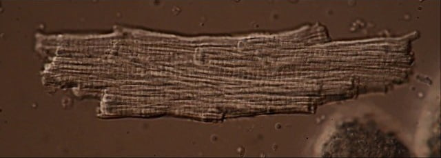 Still from a real-time movie of an isolated single living murine cardiomyocyte. The isolated single cell is still beating until having a heart attack.  Cells were provided by Dr. L Gillet & Prof. H Abriel.  ©  2014 IKELOS.