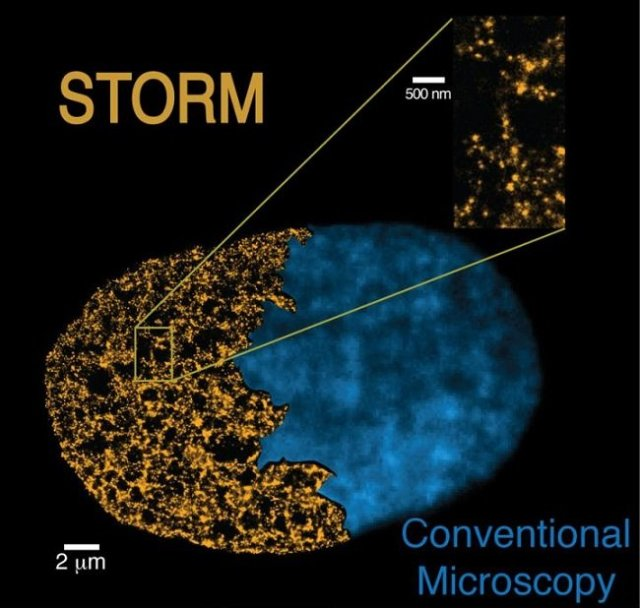 This is a comparison between an image of the nucleus of a cell obtained with the STORM technique (left yellow image) and one obtained with conventional microscopes (right blue image). The STORM technique shows its power to resolve the genome structure at the nano-scale.  Credit:  CRG/ICFO.