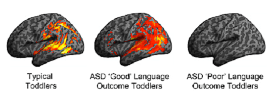 """Image depicts patterns of brain activation in typically developing, ASD """"Good"""" and ASD """"Poor"""" language ability toddlers in response to speech sounds during their earliest brain scan (ages 12-29 months). The imaging occurred one to two years prior to their language outcome designation at age 30-48 months. Note similarity in patterns of activation between the ASD Good and typically developing toddlers, which display robust activation in classic language brain regions, such as the superior temporal gyrus. In contrast, the ASD Poor language toddlers showed no statistically significant activation in classic language regions.  Credit:   UC San Diego Autism Center."""