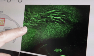 A group of neuroscientists and bio-engineers the University of Colorado has developed a microscope to such a point that minaturizzato, using a thin optical fiber, it is capable of observing the living brain tissues without damaging them.  Credit:  Network Rai.