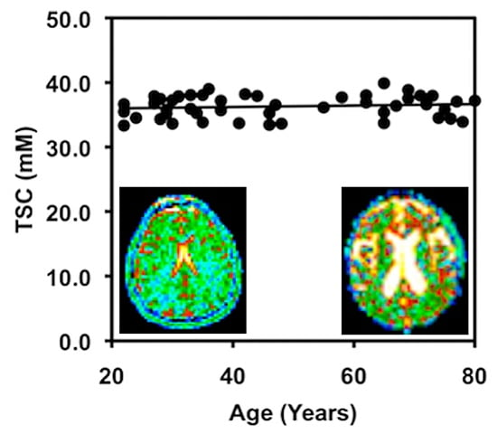Brain cell density remains constant with age among cognitively normal adults. Image: Dr. Keith Thulborn.