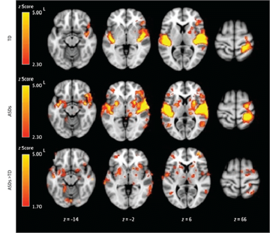 Within-Group and Between-Group Results for the Joint Auditory and Tactile Condition Within-group contrasts are thresholded at z>2.30 (corrected at P1.70 (corrected). Between-group maps are masked by regions active in either within-group condition at z>1.70 (uncorrected). ASDs indicates autism spectrum disorders; L, left; and TD, typically developing.  Neurobiology of Sensory Overresponsivity in Youth With Autism Spectrum Disorders.  Dapretto  et al 2015.