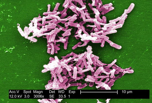 Gram-positive C. difficile bacteria from a stool sample.  Credit:  Photo by Janice Carr, Centers for Disease Control.