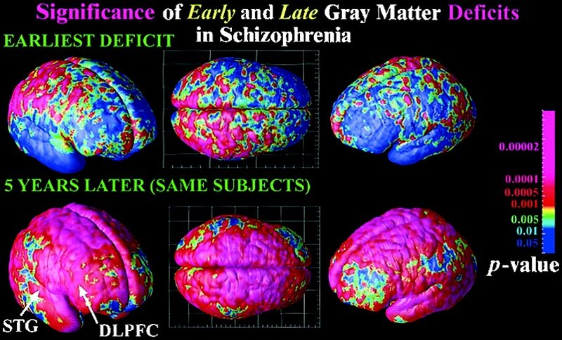 Mapping early and late deficits in schizophrenia. Deficits occurring during the development of schizophrenia are detected by comparing average profiles of gray matter between patients and controls at their first scan (age 13; Upper) and their last scan 5 years later (age 18; Lower). Although severe parietal, motor, and diffuse frontal loss has already occurred (Upper) and subsequently continues (Figs. 1 and 2), the temporal and dorsolateral prefrontal loss characteristic of adult schizophrenia is not found until later in adolescence (Lower), where a process of fast attrition occurs over the next 5 years. The color code shows the significance of these effects. Mapping adolescent brain change reveals dynamic wave of accelerated gray matter loss in very early-onset schizophrenia. Rapoport et al 2001.