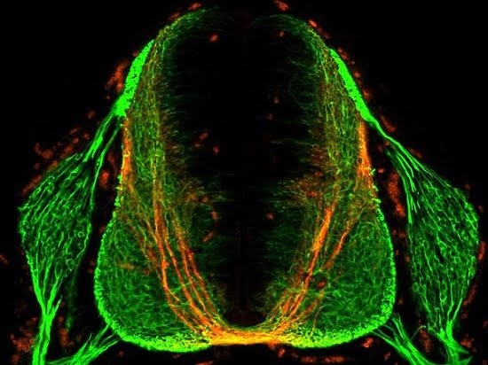 This image shows a section of the spinal cord of a mouse embryo. Neurons appear green, and those that express the Robo3 receptor are labeled red. Commissural axons appear as long, u-shaped threads, and the bottom, yellow segment of the structure represents the midline. Credit: Laboratory of Brain Development and Repair at The Rockefeller University.
