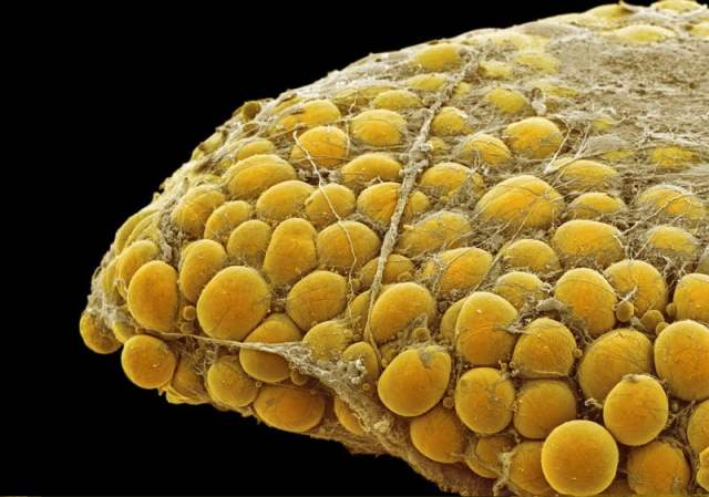 Fat tissue. Coloured scanning electron micrograph (SEM) of a sample of fat tissue, showing fat cells (adipocytes, orange) surrounded by fine strands of supportive connective tissue. Adipocytes are among the largest cells in the human body, each cell being 100 to 120 microns in diameter. Almost the entire volume of each fat cell consists of a single lipid (fat or oil) droplet. Adipose tissue forms an insulating layer under the skin, storing energy in the form of fat, which is obtained from food.  Credit: STEVE GSCHMEISSNER/SCIENCE PHOTO LIBRARY.