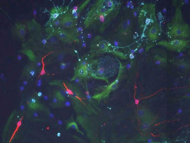 When stem cells from the old brain are cultured with signals of a young choroid plexus they can divide and form new neurons (red).  Credit: Biozentrum, University of Basel.