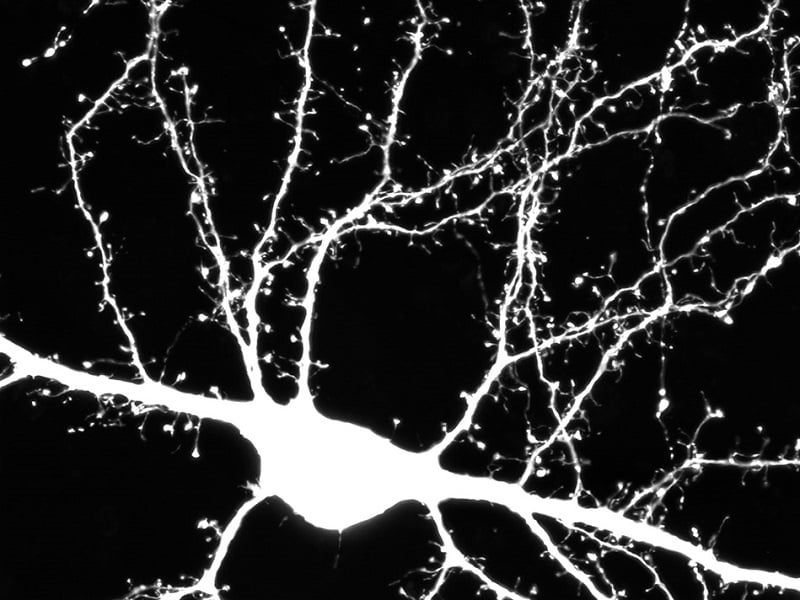 Florescent brain cell showing all places where brain connections form. Brain cells form connections with their neighbours on hairlike growths that sprout from a cell's branching arms (pictured here). These connections are important for learning. In individuals with Autism, the number of connections is not correct, which causes problems for individuals to form new memories and develop social skills.  Credit: McMaster University.