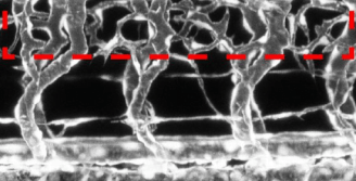 ft-neurons-modulate-the-growth-of-blood-vessels-neuroinnovations.png