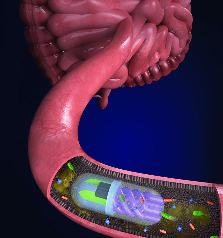A study from researchers led by Tufts University develop a 3D printed pill which samples the gut microbiome as it passes through the GI tract. The team states the ability to profile bacterial species inhabiting the gut could have important implications for conditions directly affected by the intestinal microbiome.