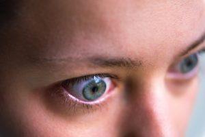 Nosebleeds Lead to Graves Disease Diagnosis