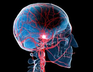 Ingestion of HbA1c associated with vascular event risk in stroke patients