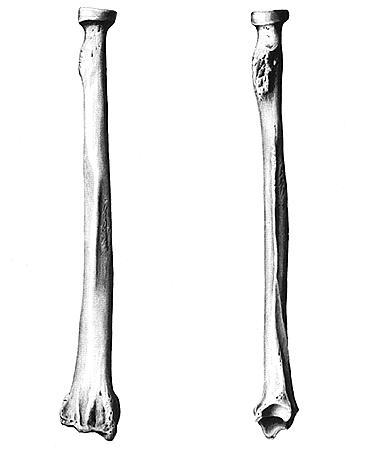 Лучевая кость. Анатомия человека. Анатомический атлас