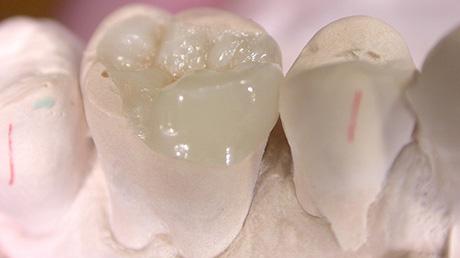 Inlay and Onlay  Implant centre Martinko