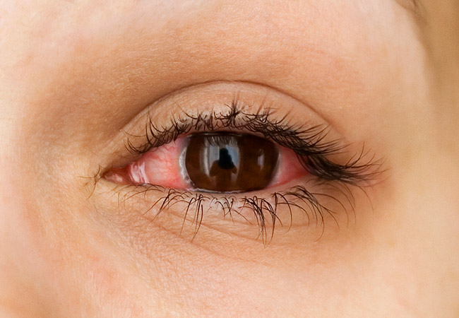 What Does Sleeping in Contact Lenses Do to Your Eyes? – Health Essentials from Cleveland Clinic