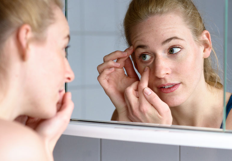 Puffy Eyes: What Causes Them and What To Do About It – Health ...