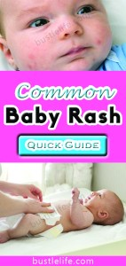 Types Common Baby Rashes