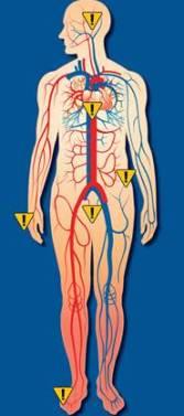 دل کی شریانوں میں رکاوٹ کی علامات 2
