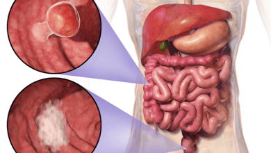 A new automated system to detect colorectal cancer