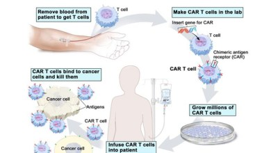 CAR-T cell technology gives hope for cancer treatment