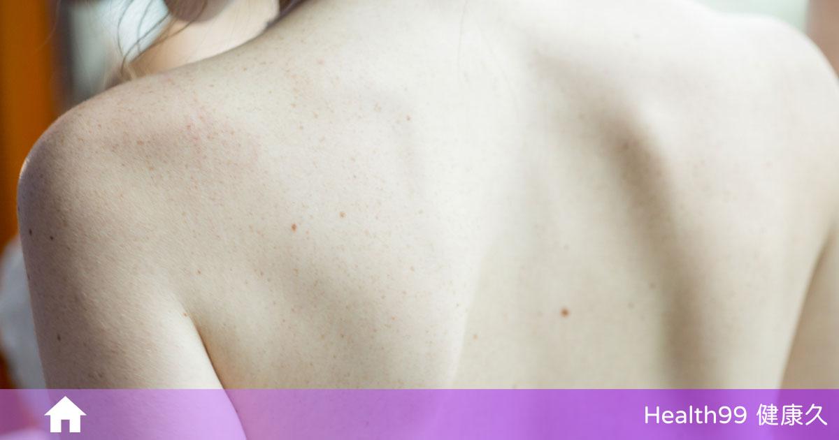 你有毛囊角化症嗎?該如何預防毛囊角化症?告訴你正確的護理方式