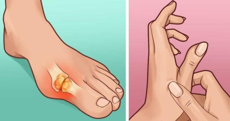 Read more about the article 「痛風」不要來!這幾種方法可以減緩你的疼痛,避免痛風發作~