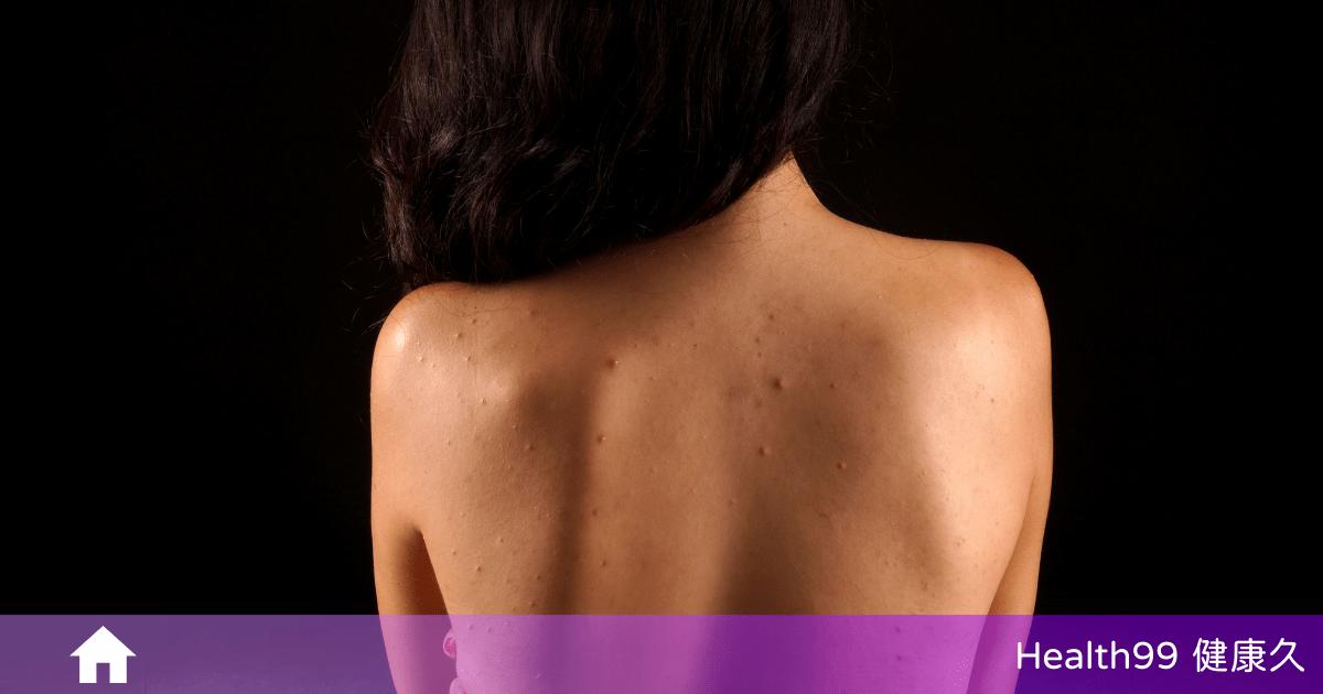 You are currently viewing 背上長痘痘怎麼辦?為甚麼背部也會長痘痘呢?該如何擊退它?