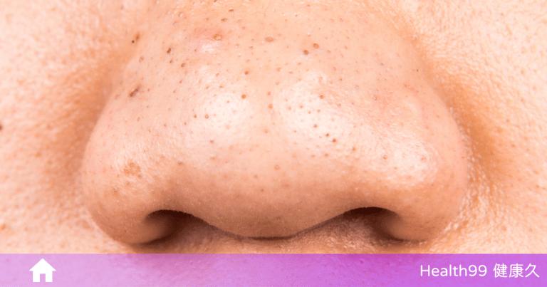 Read more about the article 鼻子不乾淨都是黑頭?醫生說:不是黑頭,是「脂質微絲」