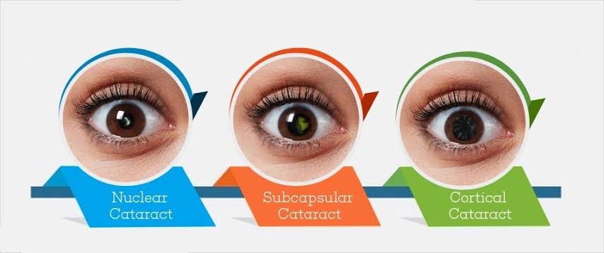 CATARACTS Causes, Symptoms & natural remedies./
