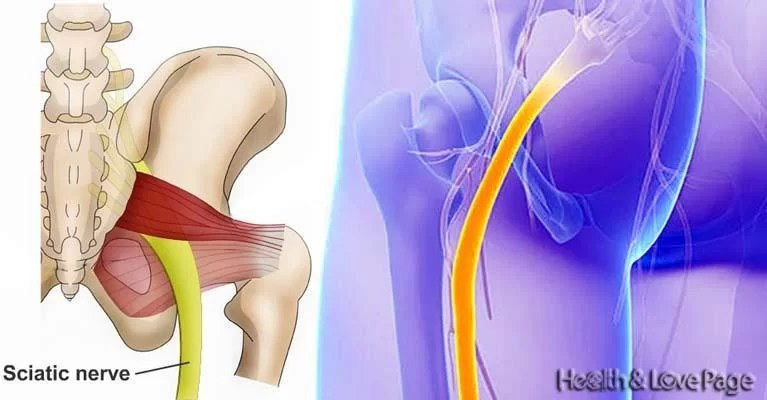 Quick and Effective Treatment for Chronic Sciatica Pain